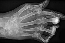 Sormien röntgen